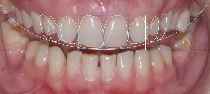 تعیین خط میانه چهره و اصلاح طرح لبخند دندان
