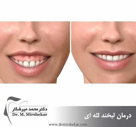 اصلاح لبخند لثه ای با لیزر لثه و جراحی لثه
