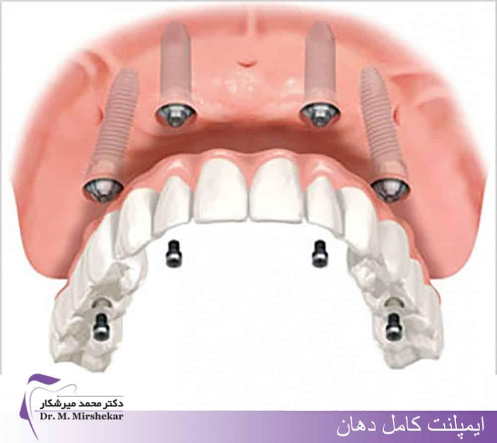 مراحل ایمپلنت تمام دندانها