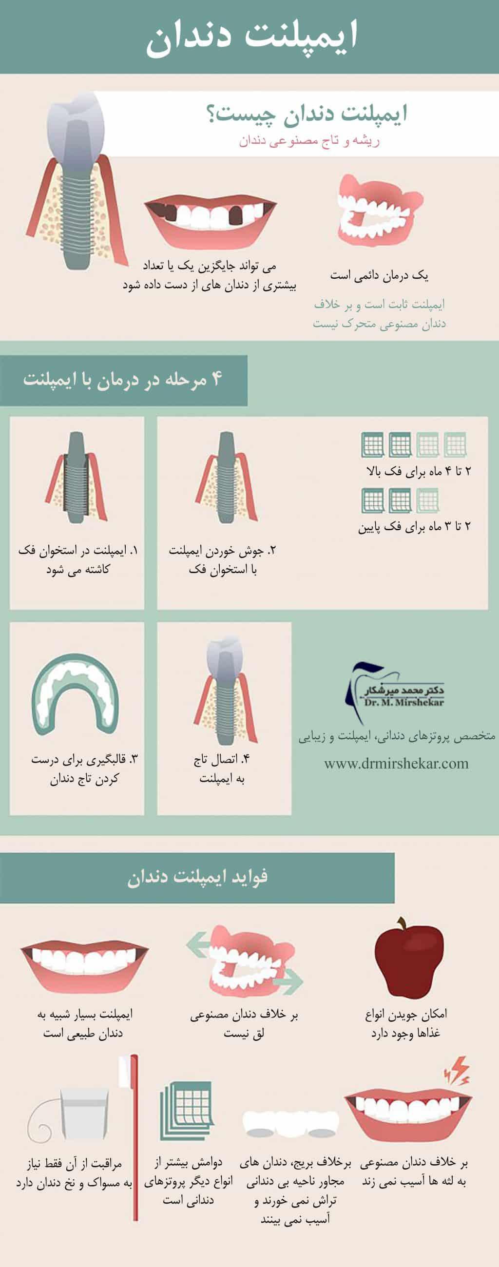 مراحل ایمپلنت دندان و انواع آن