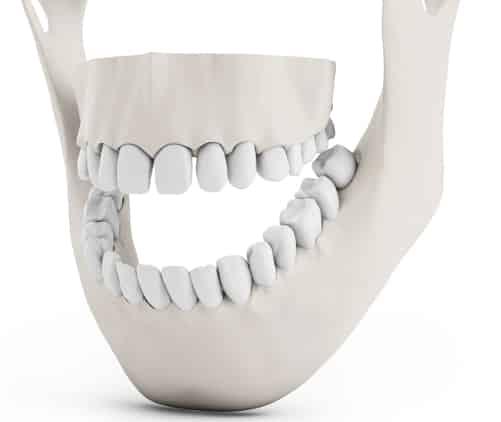 تحلیل استخوان فک در نداشتن دندان