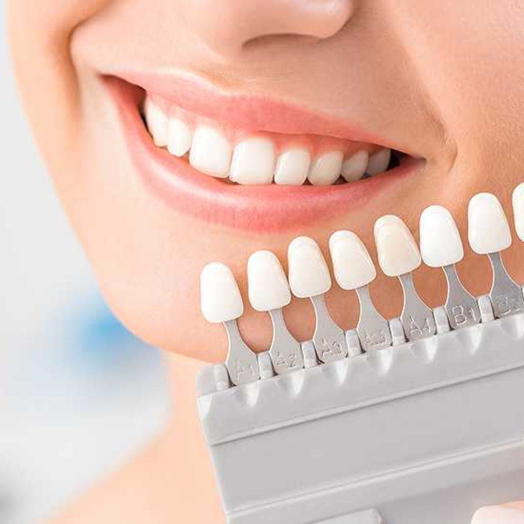 انتخاب رنگ روکش دندان a1 a2 a3 b1 b2