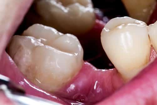 جابجایی دندان ها بعد از کشیدن دندان