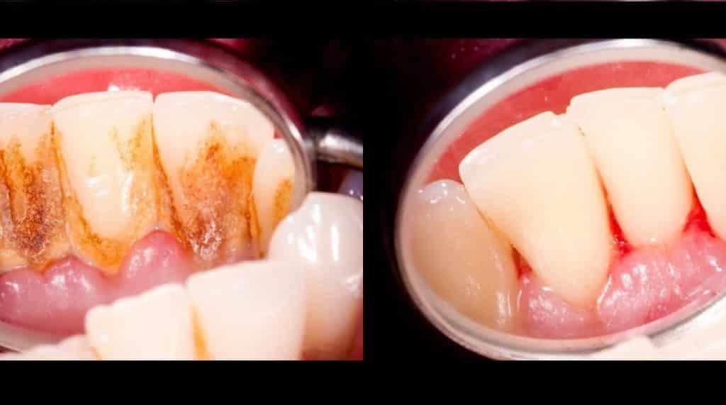 قبل و بعد از جرم گیری دندان