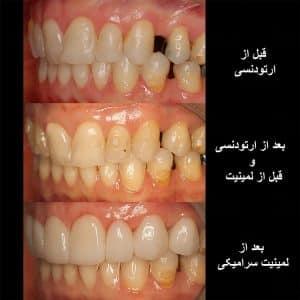تاثیر درمان ارتودنسی و لمینت برای ردیف کردن دندان ها