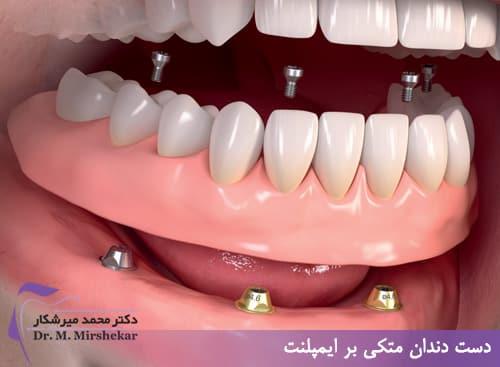 دست دندان متکی بر ایمپلنت