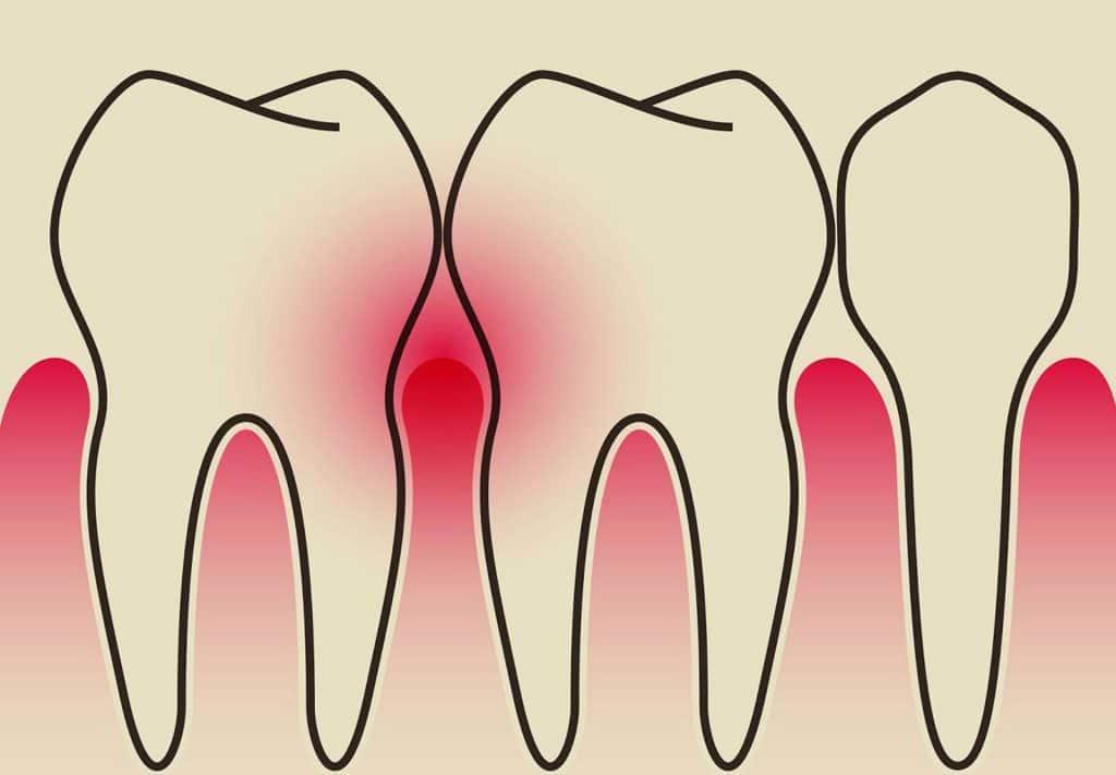 التهاب لثه و درمان آن