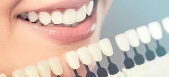 تاثیر رنگ دندان در طرح لبخند دندان