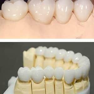 روکش تمام سرامیک دندان