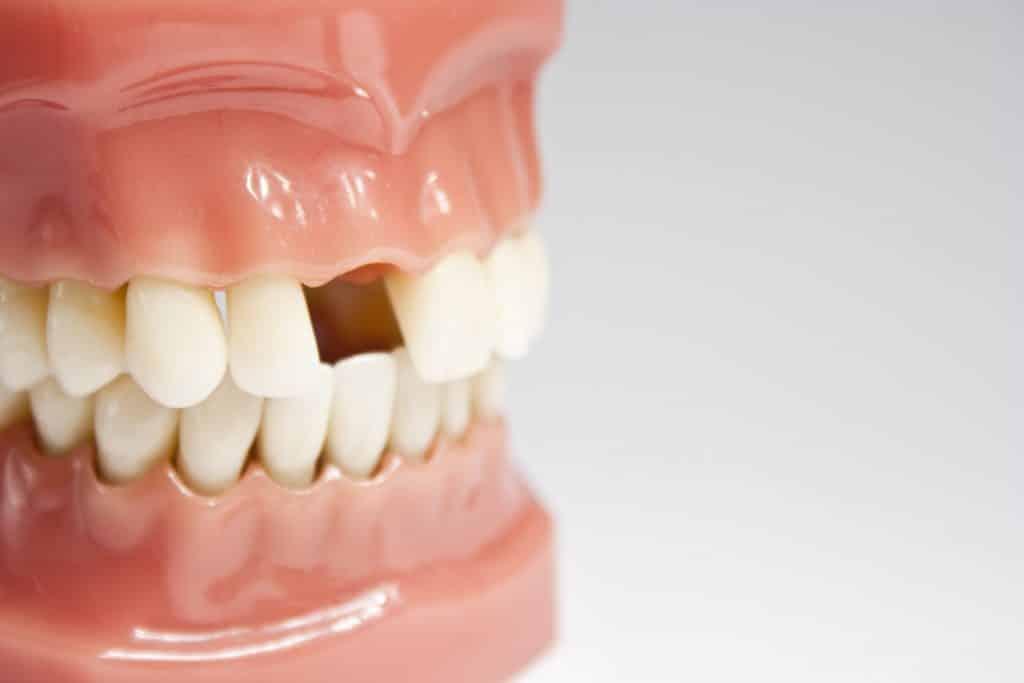 6 مورد از عوارض نداشتن دندان