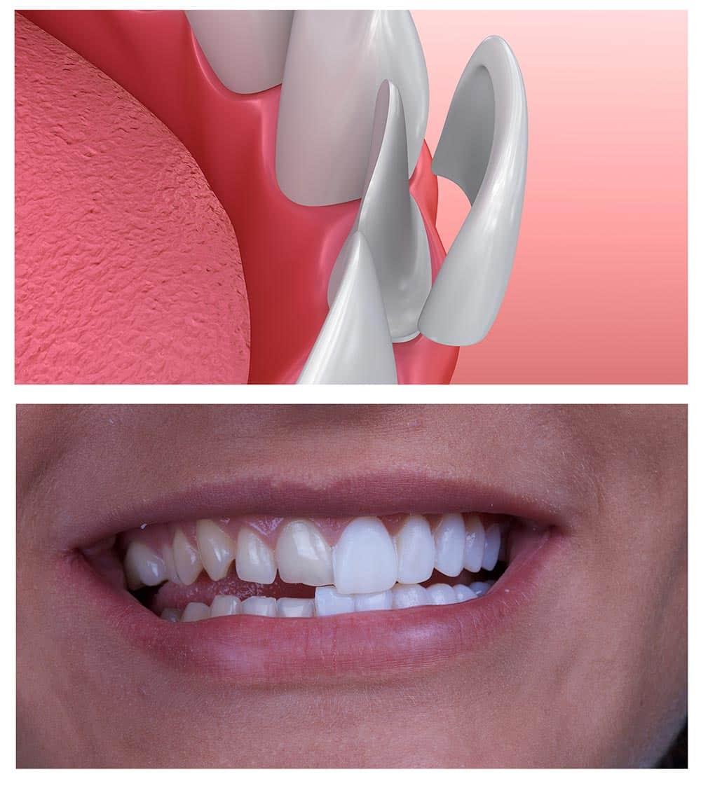 لمینت سرامیکی دندان در اصلاح طرح لبخند