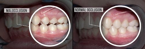 اتصال نامناسب دندان ها بعد از کشیدن دندان