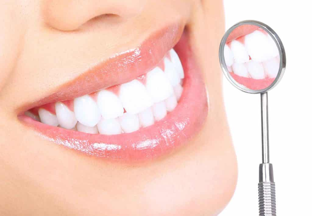 سفید کردن دندان ، بلیچینگ