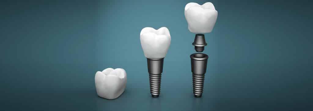 مراحل ایمپلنت یک دندان