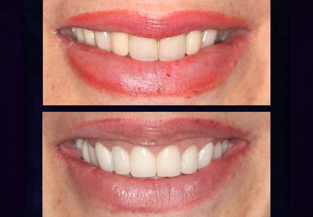 بازسازی کل دهان ، لمینت دندان