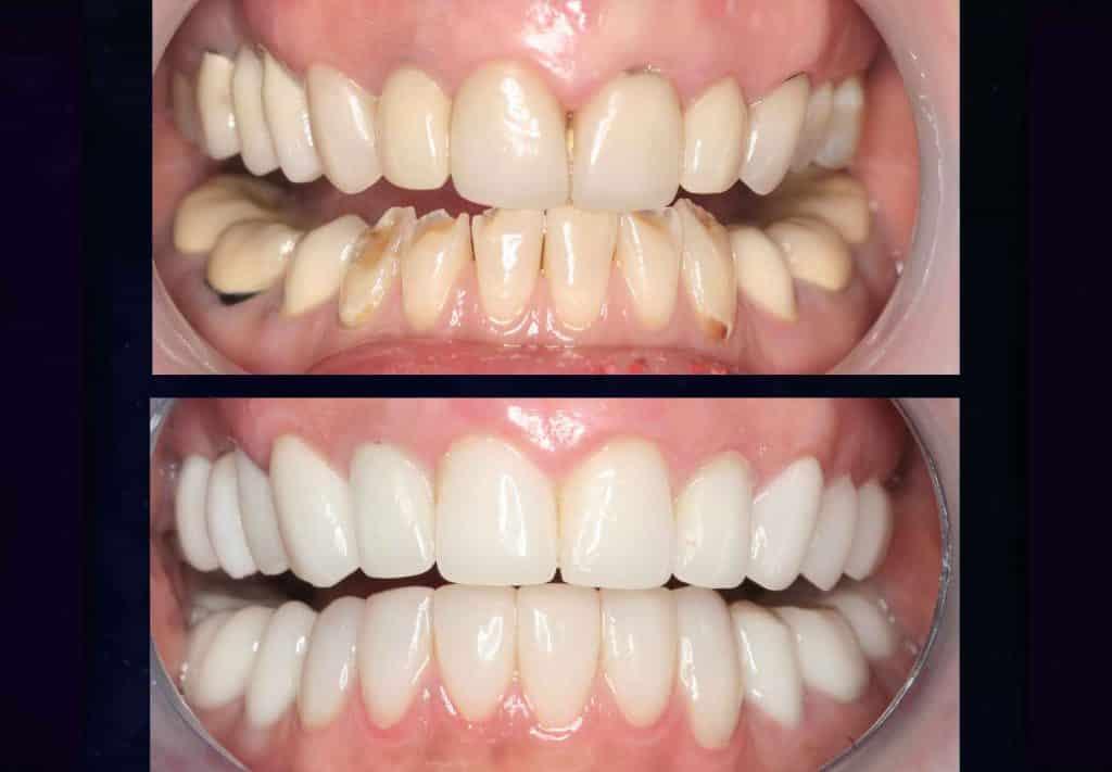 بازسازی کل دندان ها
