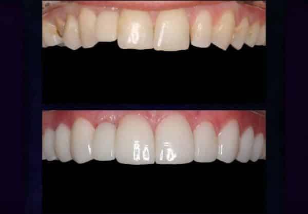 نمونه درمان لمینت سرامیکی دندان توسط دکتر میرشکار