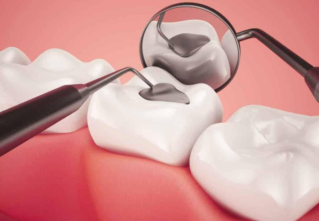مراقبت های بعد از پر کردن دندان
