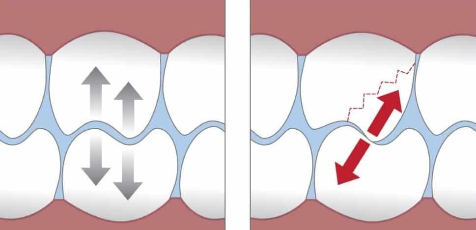 حساسیت بعد از پرکردن دندان و دیگر ترمیم ها