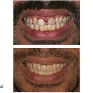 ایمپلنت، لمینیت و افزایش طول تاج دندان با لیزر