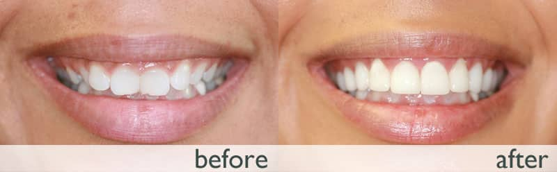 درمان لبخند لثه ای با لیزر و لمینت دندان