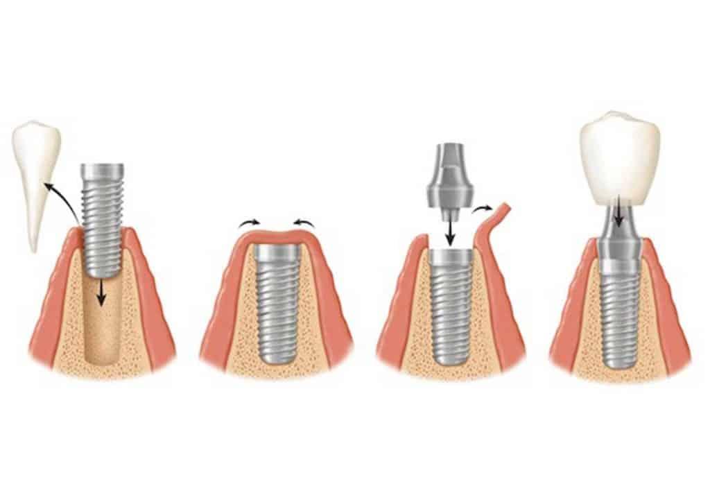 چهار مرحله کاشت دندان