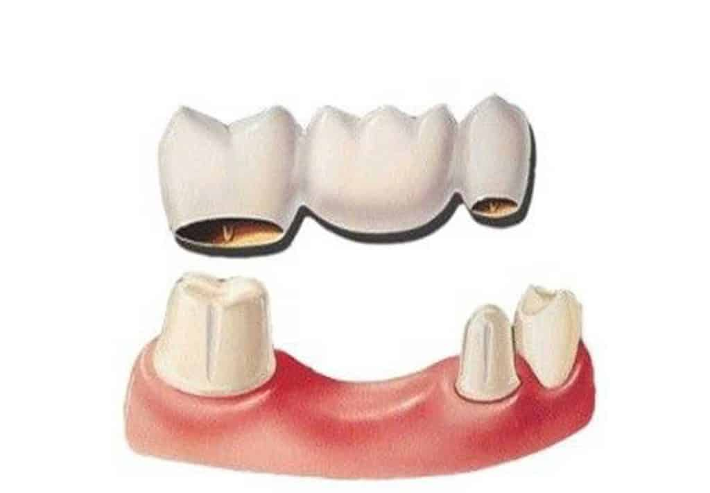بریج دندان